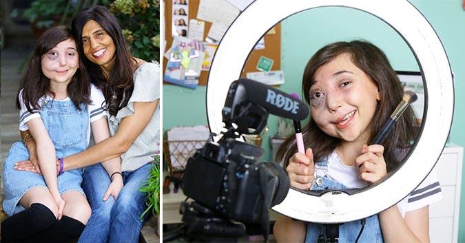 Mắc dị tật bẩm sinh hiếm gặp, cô bé 12 tuổi gây bão cộng đồng mạng vì cách nhìn nhận cuộc sống đặc biệt